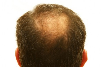 Can Taking Vitamins Stop Hair Loss?