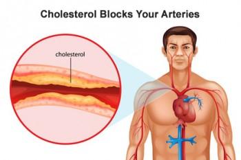повышенный холестерин симптомы лечение